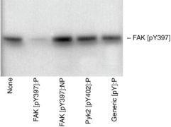 Phospho-FAK (Tyr397) Antibody (44-624G)