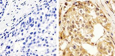 ERK1 + ERK2 Antibody (44-654G)