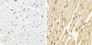 Phospho-p38 MAPK alpha (Thr180, Tyr182) Antibody (44-684G)