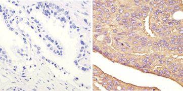 JNK1 Antibody (44-690G)