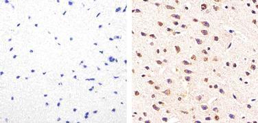 Phospho-Tau (Ser214) Antibody (44-742G)
