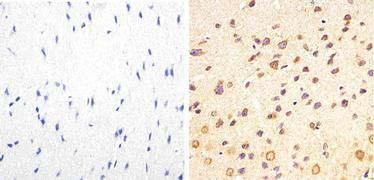 Phospho-Tau pThr217 Antibody (44-744)