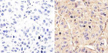 Phospho-EGFR pTyr992 Antibody (44-786G)