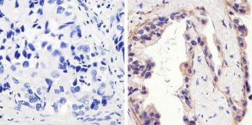 Phospho-EGFR pTyr1173 Antibody (44-794G)