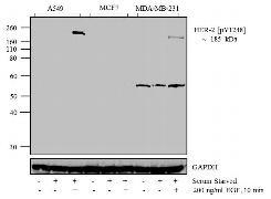 Phospho-ErbB2 (Tyr1248) Antibody (44904G)