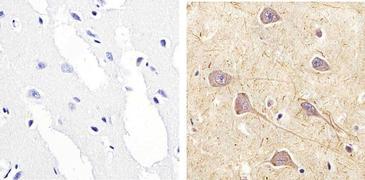 Phospho-RSK1 pSer221 Antibody (44-924G)