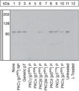 Phospho-PKC gamma (Thr655) Antibody (44-965)