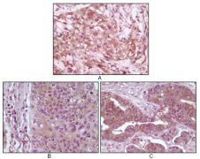 4E-BP1 Antibody (MA5-15314)