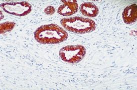 PTEN Antibody (51-2400)