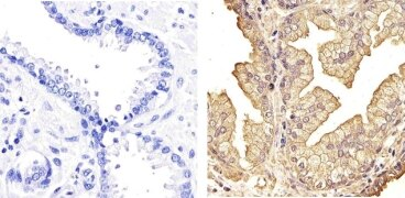 NFkB p105 / p50 Antibody (51-3500)