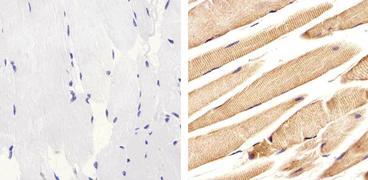 ALK Antibody (51-3900)