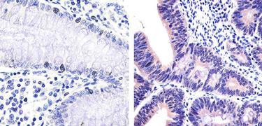 IRAK4 Antibody (700026)