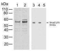 Phospho-SMAD2 (Thr8) Antibody (700050)