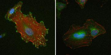 Vinculin Antibody (700062)