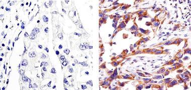 Caspase 3 Antibody (700182)