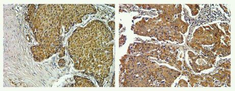 FAK2 Antibody (700183)