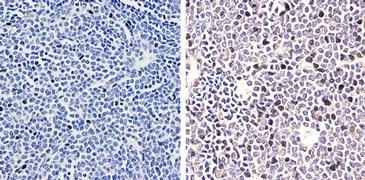 STAT4 Antibody (700185)