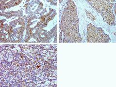 Phospho-4E-BP1 (Thr37) Antibody (700238)