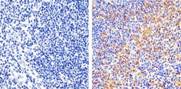 Phospho-FAK (Tyr397) Antibody (700255)