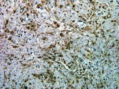 Phospho-AKT1 (Ser473) Antibody (700392)