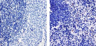 TARC Antibody (700655)