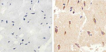 LC3B Antibody (700712)