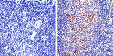 FOXP3 Antibody (700914)
