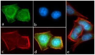 Phospho-AKT1 (Thr308) Antibody (701052)