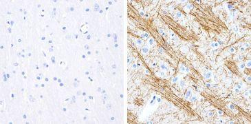 Phospho-Tau (Ser199) Antibody (701054)