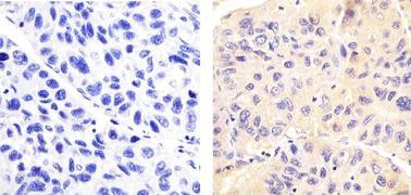 Phospho-LRRK2 (Ser935) Antibody (701066)