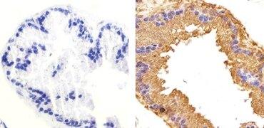 Phospho-GSK3 beta (Ser9) Antibody (701069)