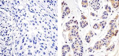 NFkB p65 Antibody (701079)