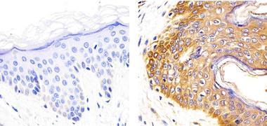 IL-2 Antibody (701080)