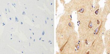 alpha Synuclein Antibody (701085)
