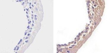 STAT2 Antibody (701105)