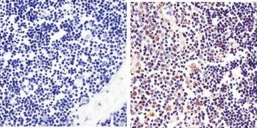 STAT6 Antibody (701110)