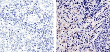CXCL2 Antibody (701126)