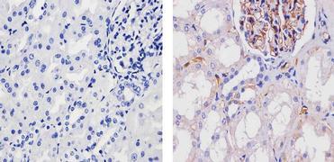Adiponectin Antibody (701148)