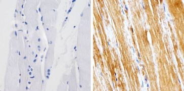 Metadherin Antibody (701171)