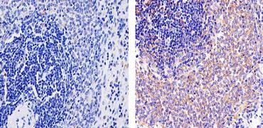 CXCL10 Antibody (701225)