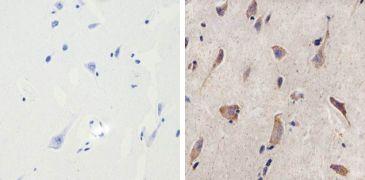 MMP16 Antibody (701306)