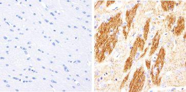 Phospho-Tau (Thr181) Antibody (701530)