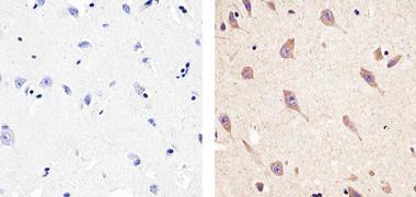 CXCL5 Antibody (710010)
