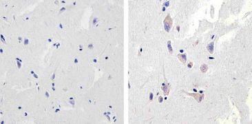 NMDAR1 Antibody (710020)