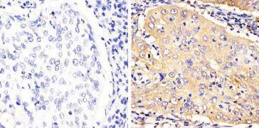 STAT3 Antibody (710077)