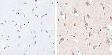 Phospho-FAK2 / PYK2 pTyr402 Antibody (710087)