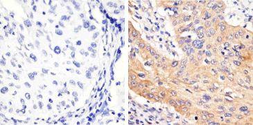 Phospho-STAT3 (Tyr705) Antibody (710093)
