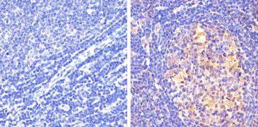 Phospho-STAT5 alpha pTyr694 Antibody (710094)