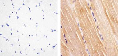 Phospho-IR pTyr1158 Antibody (710101)