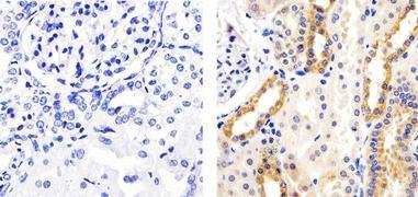 Phospho-AS160 (Thr642) Antibody (710105)